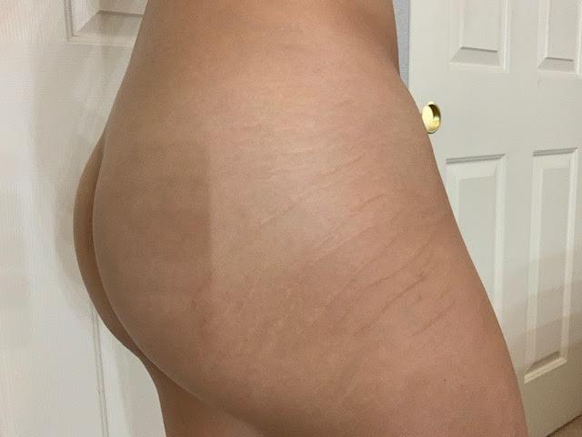 6 week post stretch mark tattoo