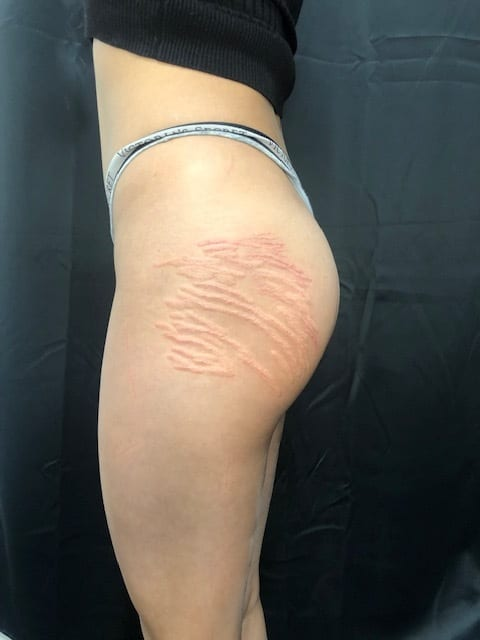 stretch mark tattoo after session