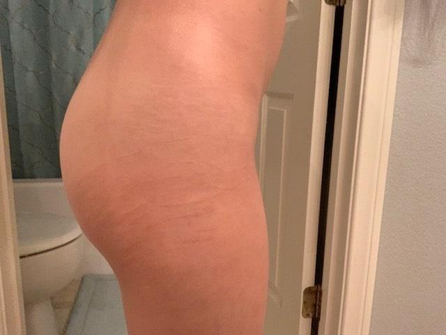 3 week post stretch mark tattoo