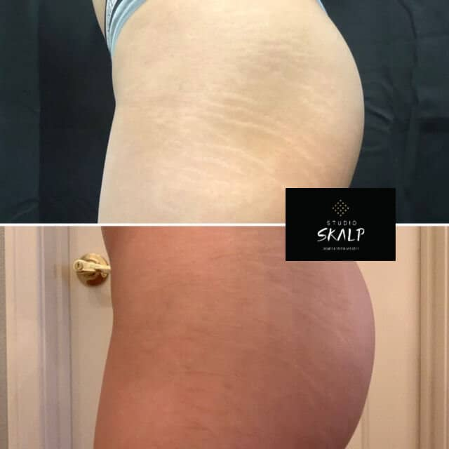 before and after stretch mark conceal