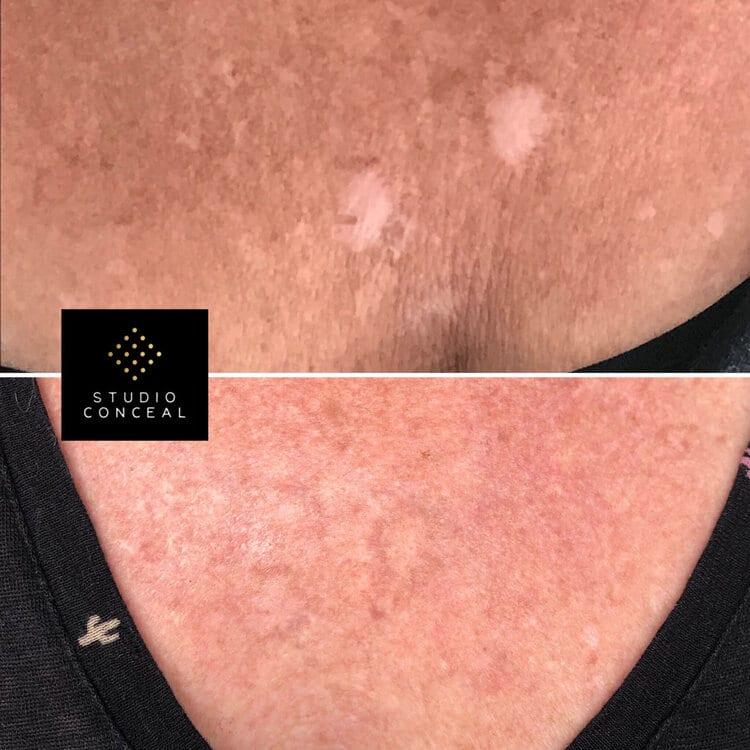 arizona scar revision