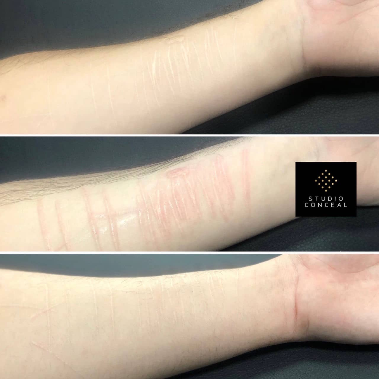 Self harm tattoo coverup before and after pictures