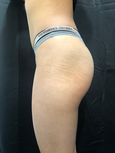 stretch mark tattoo before