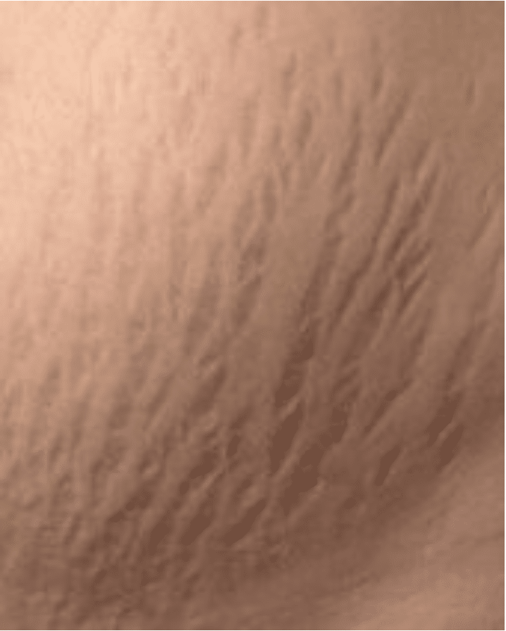 dark stretch marks not a candidate for camouflage tattoo