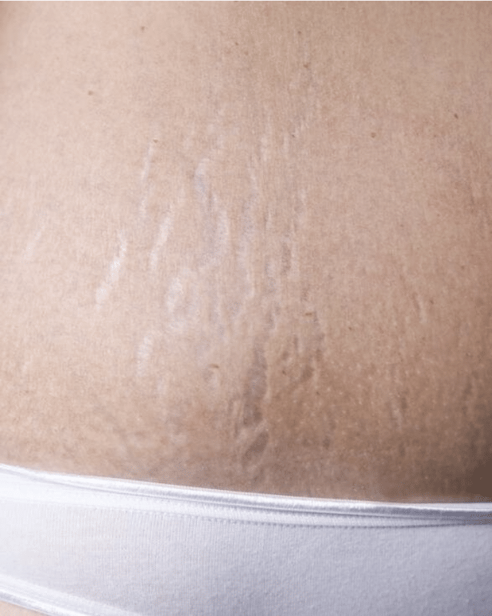 grey stretch marks not a candidate for camouflage tattoo