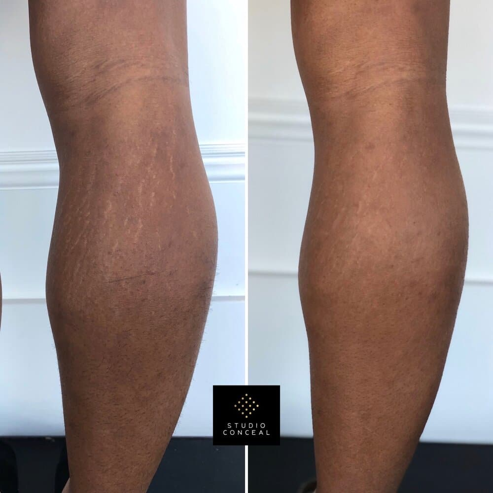 before and after stretch mark tattoos behind knees