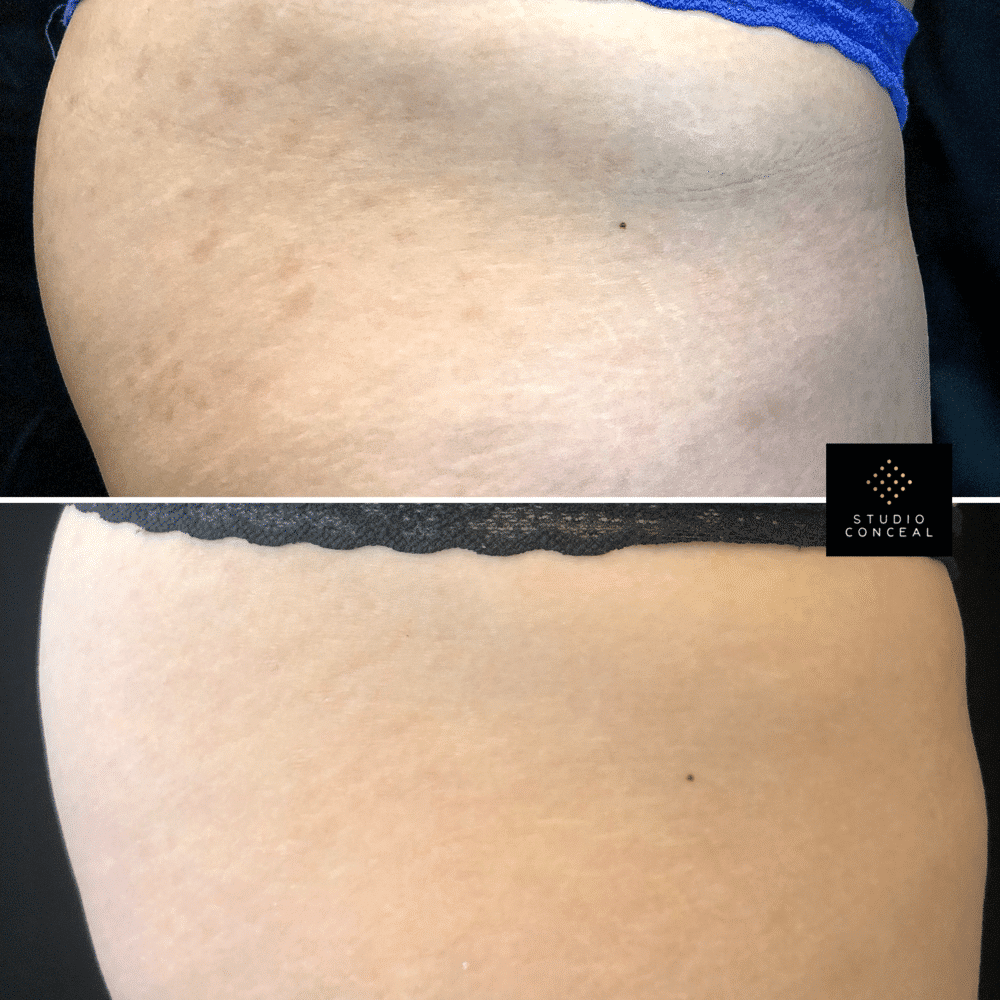 stretch mark tattoo az before and after