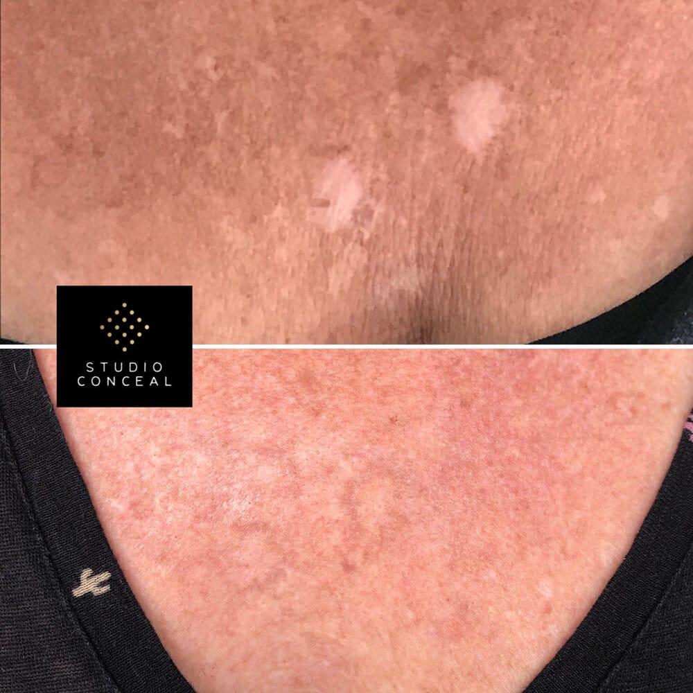 arizona scar revision.jpg