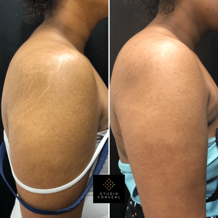 cover up tattoos on arm stretch marks
