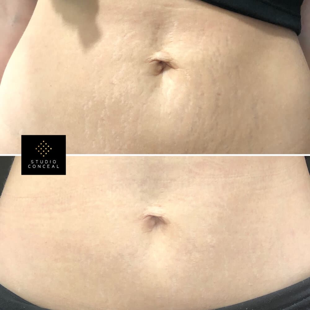 Before after stretch mark tattoos