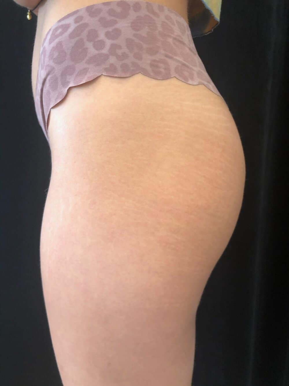 Before stretch mark tattoo photo left side