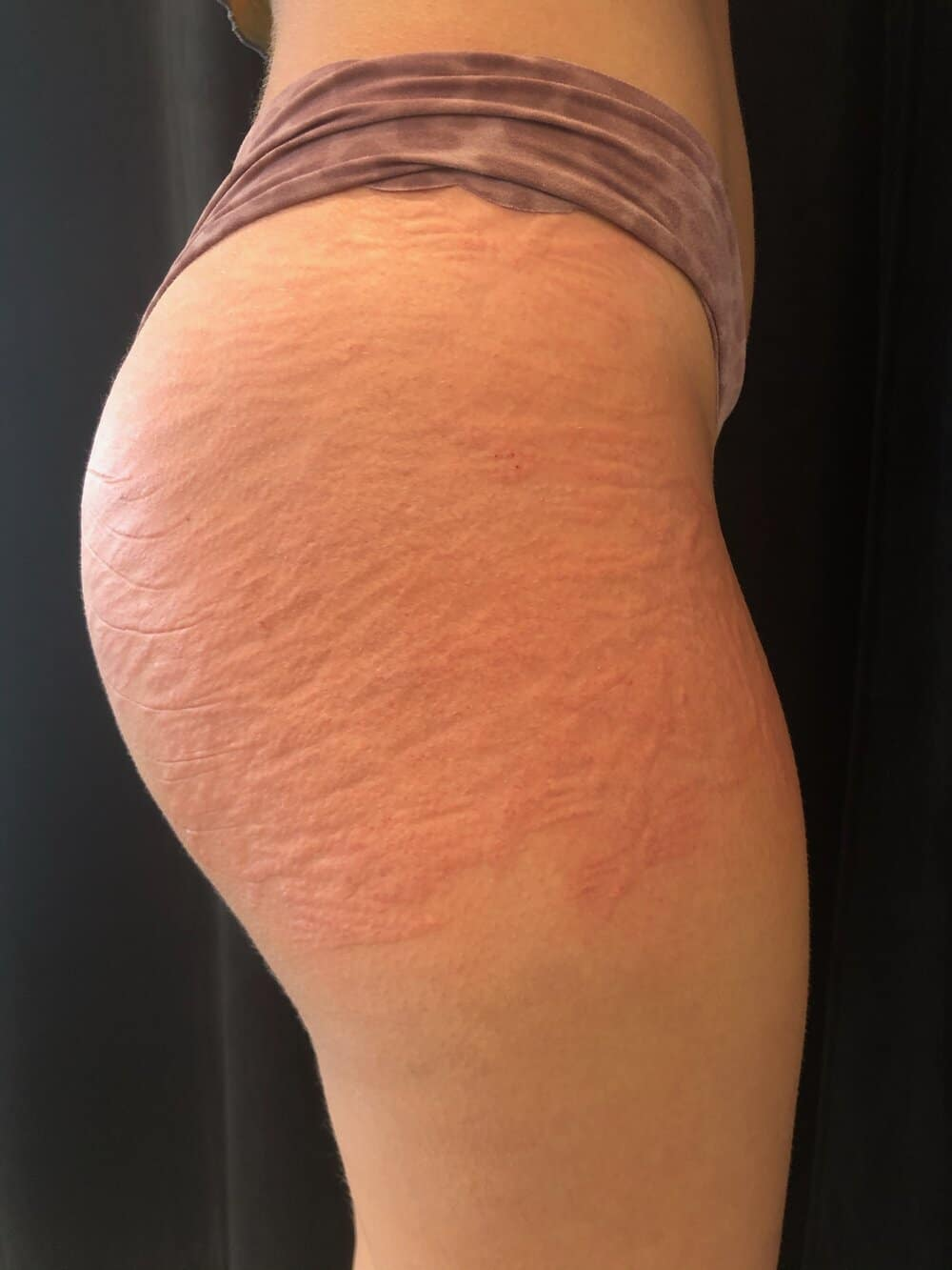 Immediately after first stretch mark tattoo  session- right side