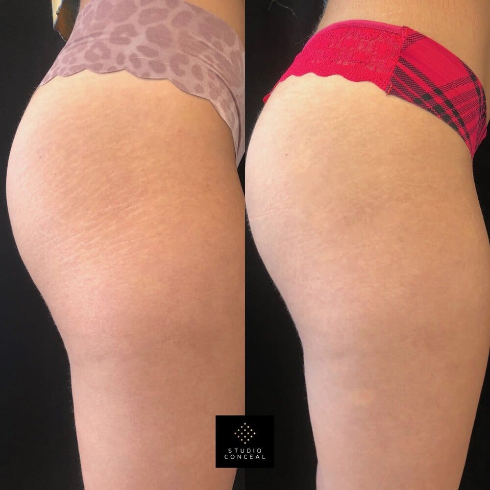 Before and after final results  stretch mark tattoo - right side