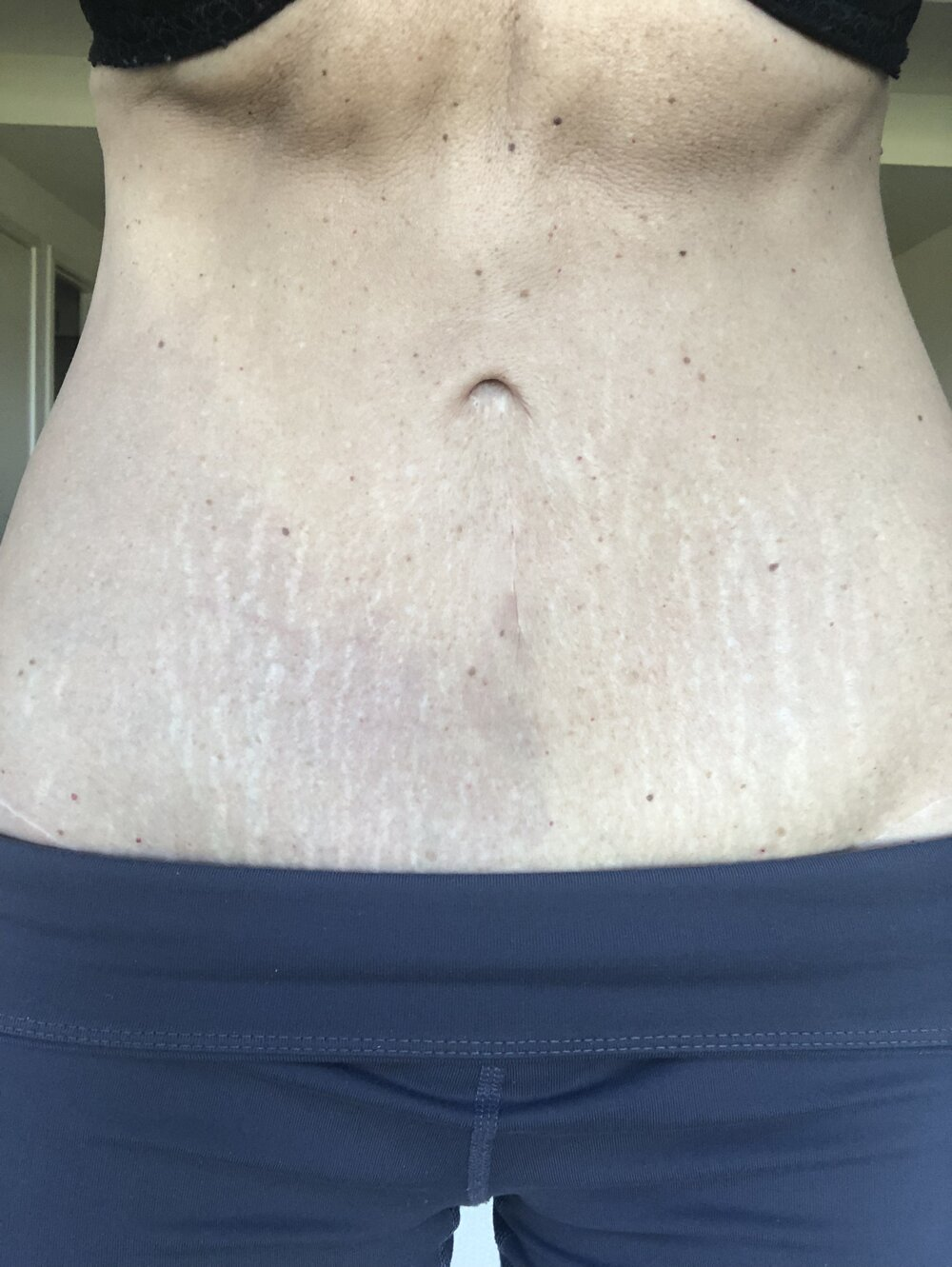 Stretch marks from pregnancy