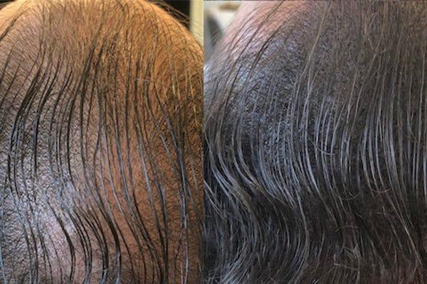 scalp micropigmentation with hair