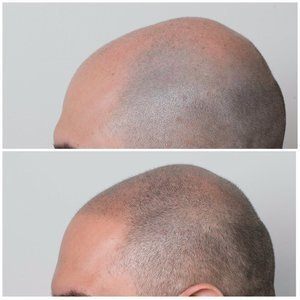 scalp micropigmentation az