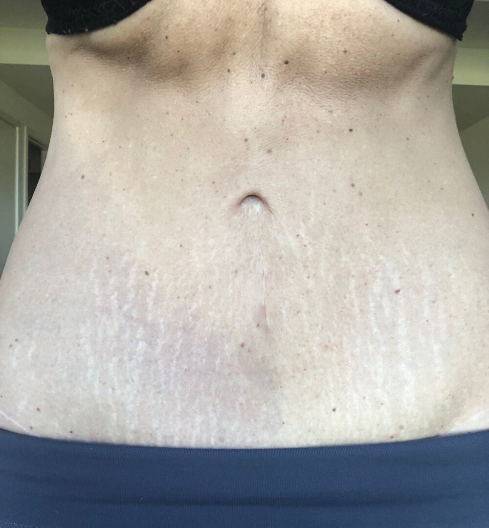Stretch Marks Before Camouflage Tattoo