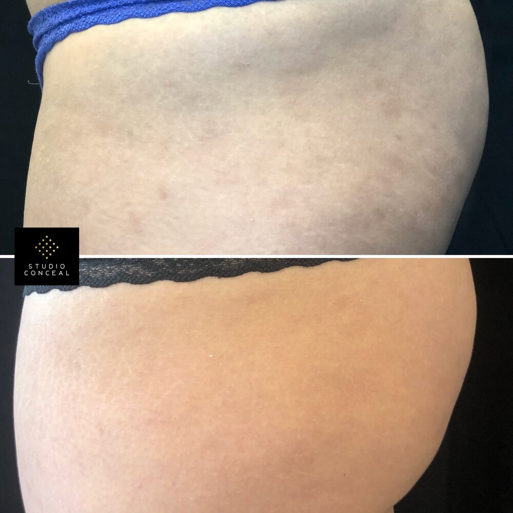 tattoo to cover stretch marks
