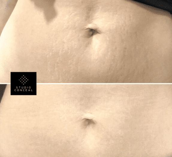 tummy stretch mark tattoos.PNG