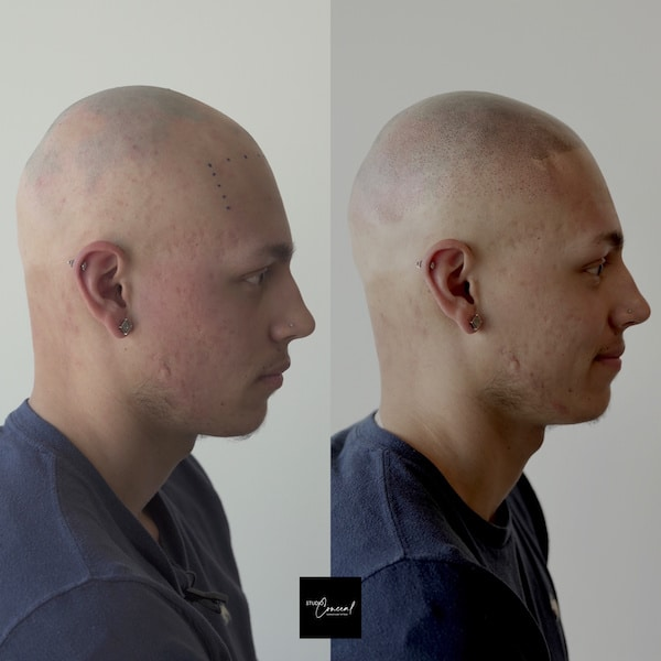 hair tattoo before and after
