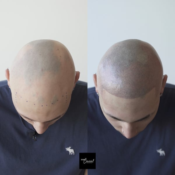 hair tattoo before and after for alopecia areata