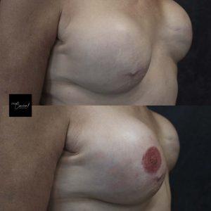 nipple tattoo