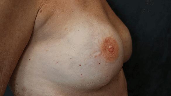 nipple tattoo az